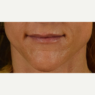 45-54 year old woman treated with Restylane after 3109347