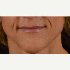 45-54 year old woman treated with Restylane before 3109347