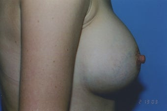 38 Year Old Female with sub muscular 350 cc Saline implants 1364259