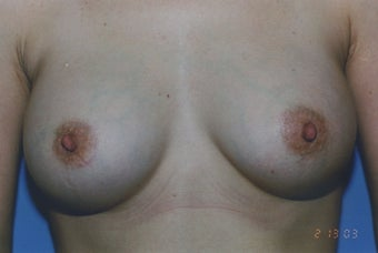 38 Year Old Female with sub muscular 350 cc Saline implants after 1364259