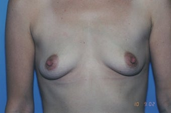 38 Year Old Female with sub muscular 350 cc Saline implants before 1364259