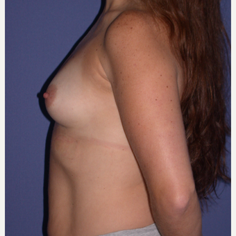 400cc Breast Augmentation before 3657555