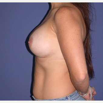 400cc Breast Augmentation after 3657555