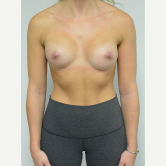 25-34 year old woman treated with Breast Augmentation who wants a natural look after 3644542