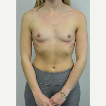 25-34 year old woman treated with Breast Augmentation who wants a natural look before 3644542