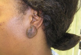 earlobe keloid excision and reconstruction before 1031637