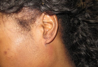 earlobe keloid excision and reconstruction after 1031637
