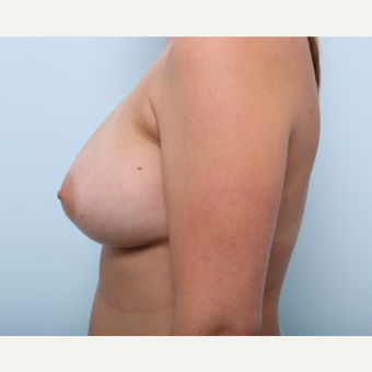 Breast Augmentation after 3508172