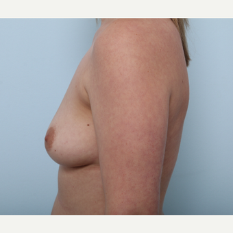 Breast Augmentation before 3508172