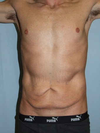 Male Tummy Tuck before 1285469