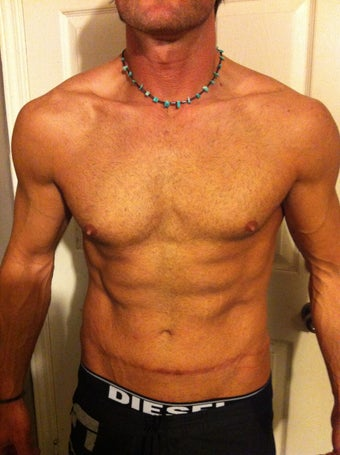 Male Tummy Tuck after 1285469