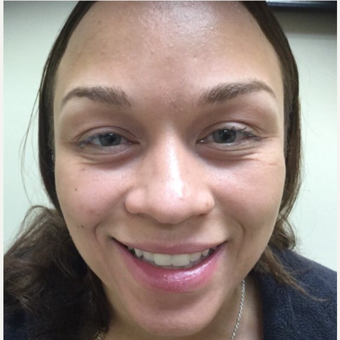 25-34 year old woman treated with Botox before 3443835