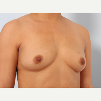 Breast Augmentation before 3340160