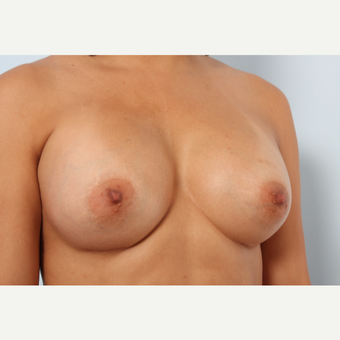 Breast Augmentation after 3340160