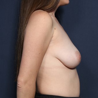 25-34 year old woman treated with Breast Lift with Implants (view 2 of 2) before 3109836