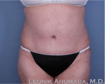 55-64 year old woman treated with Tummy Tuck after 2323418
