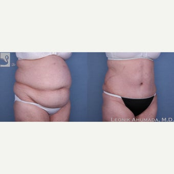 55-64 year old woman treated with Tummy Tuck 2323418