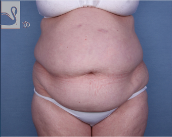 55-64 year old woman treated with Tummy Tuck before 2323418