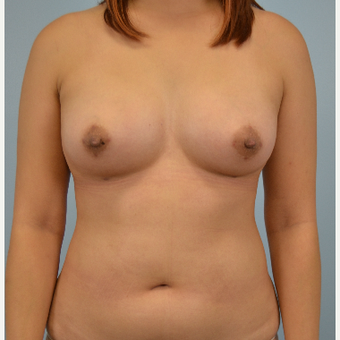 25-34 year old woman treated with Breast Fat Transfer after 3432059