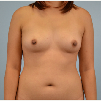 25-34 year old woman treated with Breast Fat Transfer before 3432059