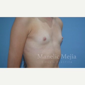 NONCOM 25-34 year old woman treated with Breast Augmentation before 3647414