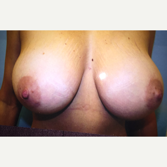 25-34 year old woman treated with Breast Implants after 3379136