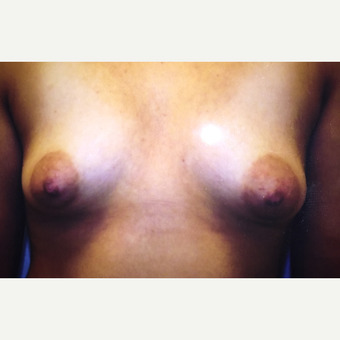 25-34 year old woman treated with Breast Implants before 3379136