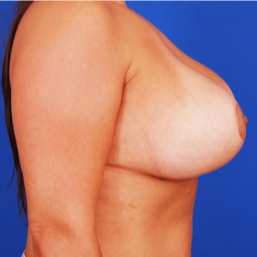 25-34 year old woman treated with Breast Lift with Implants after 3459119