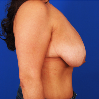 25-34 year old woman treated with Breast Lift with Implants before 3459119