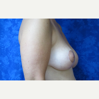 35-44 year old woman treated with Breast Lift after 3305825