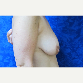 35-44 year old woman treated with Breast Lift before 3305825
