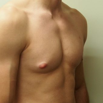 18-24 year old man treated with Male Breast Reduction before 3743424