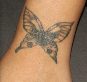 PicoSure Tattoo Removal before 1255538