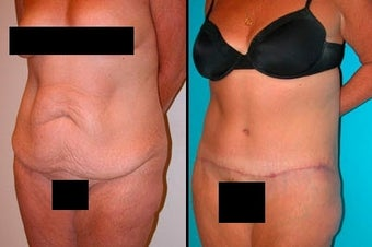 Tummy Tuck before 3037981