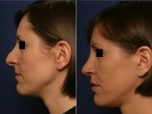 Rhinoplasty revision after 143662