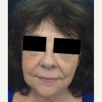 64 year old woman treated with Injectable Fillers for Facial Rejuvenation after 3645665