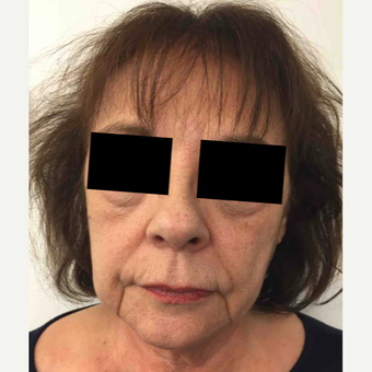 64 year old woman treated with Injectable Fillers for Facial Rejuvenation before 3645665