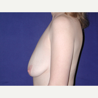 35-44 year old woman treated with Breast Lift with Implants before 3766185