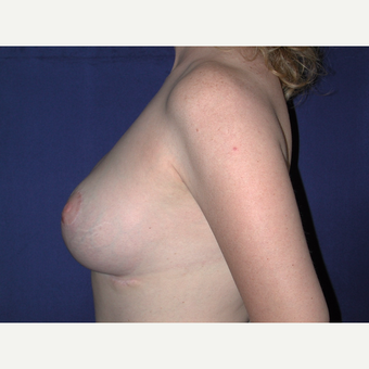 35-44 year old woman treated with Breast Lift with Implants after 3766185