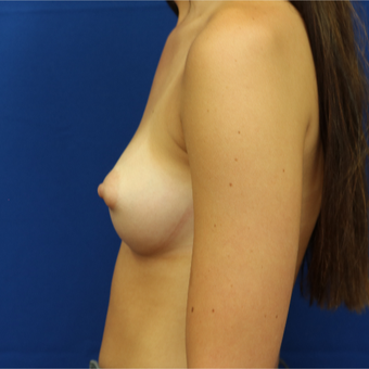 25-34 year old woman treated with Breast Lift before 3685673