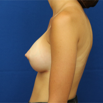 25-34 year old woman treated with Breast Lift after 3685673