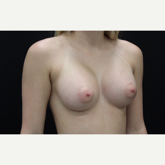 18-24 year old woman treated with Breast Augmentation after 3099292