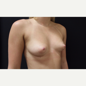 18-24 year old woman treated with Breast Augmentation before 3099292