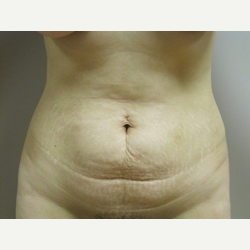 38 year old woman treated with Tummy Tuck before 3484857
