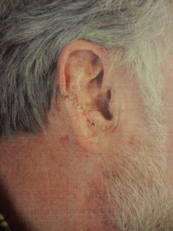 Ear Surgery for post cancer reconstruction