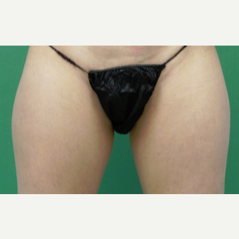 35-44 year old woman treated with SculpSure before 2786963