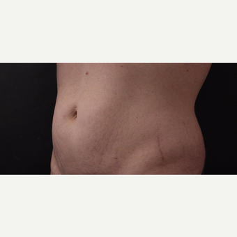 30 year old man treated with CoolSculpting after 3630340
