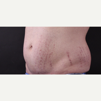 30 year old man treated with CoolSculpting before 3630340