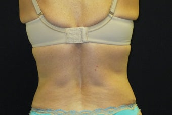 CoolSculpting Bilateral Love Handles after 1523554