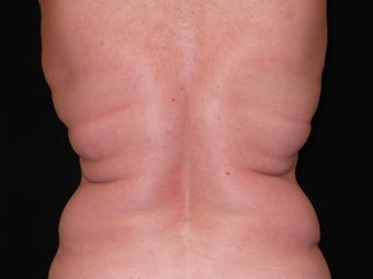 CoolSculpting Bilateral Love Handles before 1523554